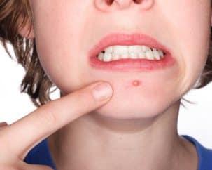 acne_conglobata