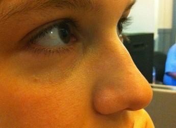 aprende-como-reducir-los-poros-de-la-piel_qzxg8