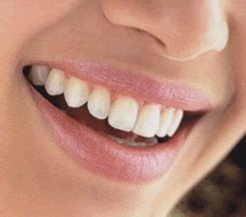 blanquea-tus-dientes-de-forma-natural_1o8x4