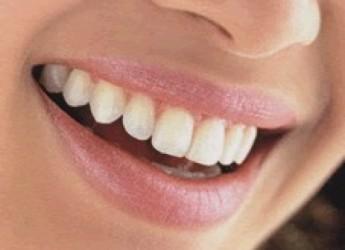 como-cuidar-nuestras-encias-para-conseguir-unos-dientes-sanos-y-fuertes-parte-i_b4iul