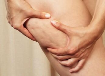como-deshacerte-de-la-celulitis-en-las-piernas_qfnbs