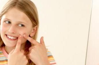 como-prevenir-el-acne-adolescente_gywco
