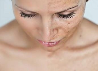 despigmentacion-de-la-piel_36cn2