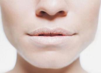labios-agrietados-causas-como-prevenir-y-remedios_ab6kz