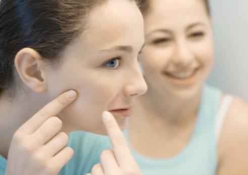 los-alimentos-que-afecta-el-acne_rz4ns