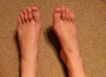 maneras-de-prevenir-la-mordedura-de-zapatos_qbruk