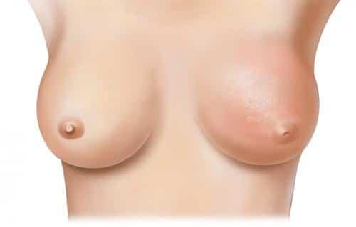 prevenir-el-cancer-de-mama-desde-nuestra-cocina-parte-i_14qa6