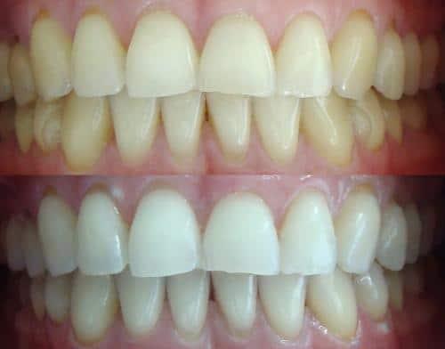soluciones-naturales-para-obtener-dientes-blancos_lh0c7